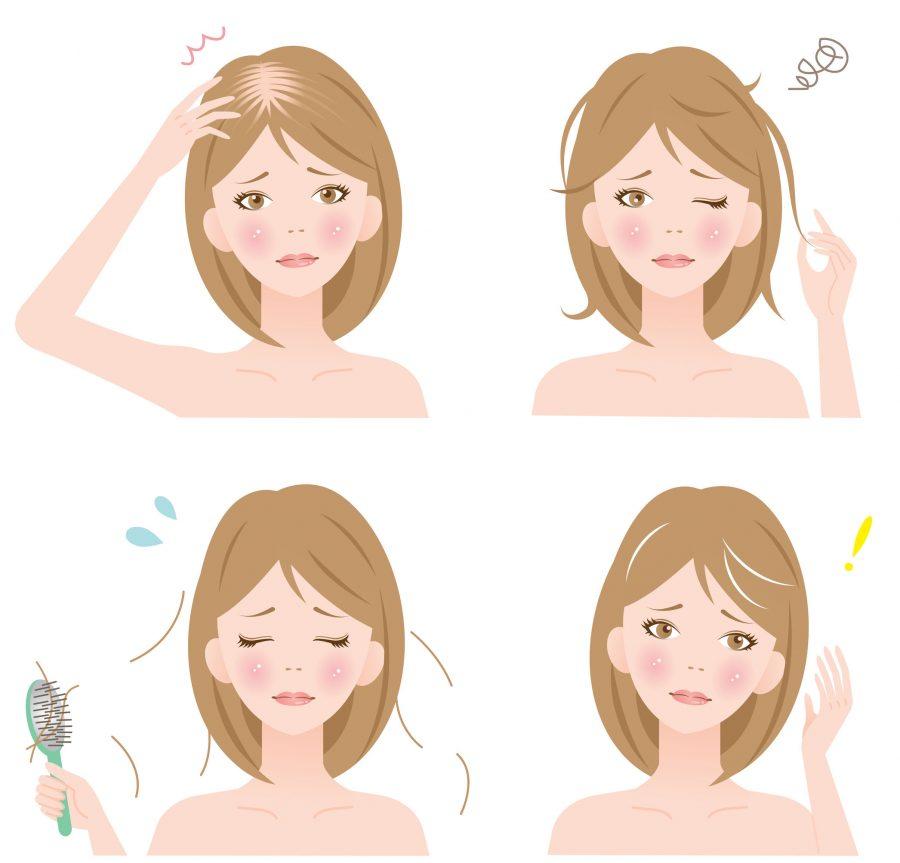 Wypadanie włosów czy łysienie