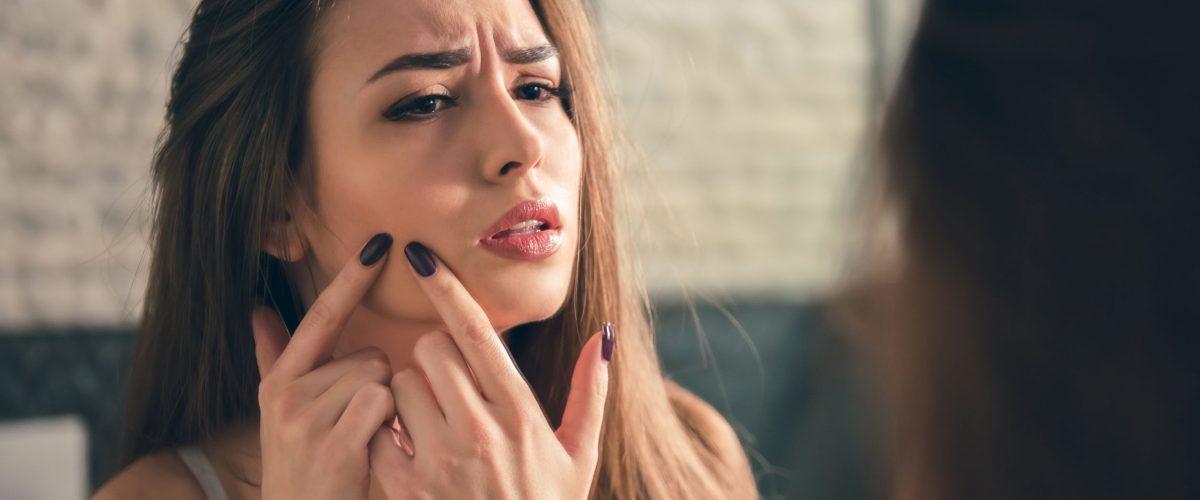 Kosmetyki na trądzik – są skuteczne i nie zapłacisz za nie więcej niż 30 zł!